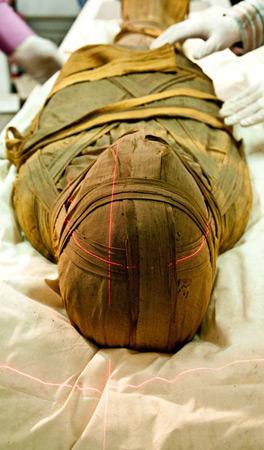 Стародавні мумії теж страждали від атеросклерозу